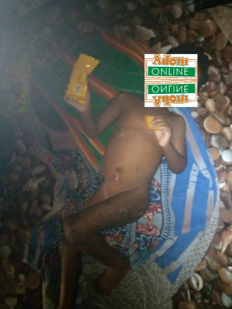 Father burns his 3-year-old daughter for disrespecting him (Photos)